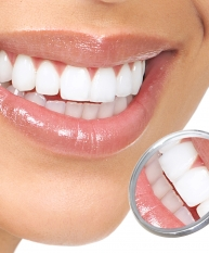 Periodontal Disease Therapy