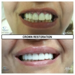 Restoration with Crowns by Dr. Le of My Fairfax Dental, VA