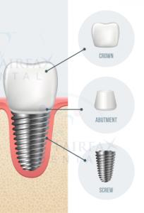 Dental-Implants in Fairfax, VA. by Dr. Le