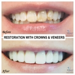 Restoration with Crowns and Veneers by Dr. Le of My Fairfax Dental, VA