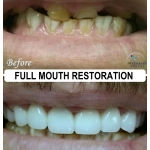 Full Mouth Restoration by Dr. Le of My Fairfax Dental, VA
