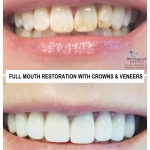 Full Mouth Restoration with Crowns and Veneers by Dr. Le of My Fairfax Dental, VA
