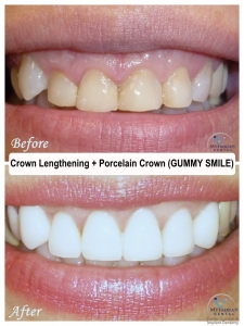 Gummy Smile Fix with Crown Lengthening and Crowns at My Fairfax Dental, VA
