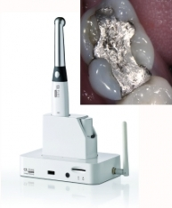 Digital Intra-Oral Camera