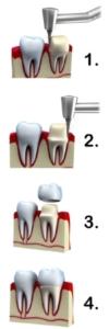 Dental Crowns by Dr.Le of Fairfax,VA