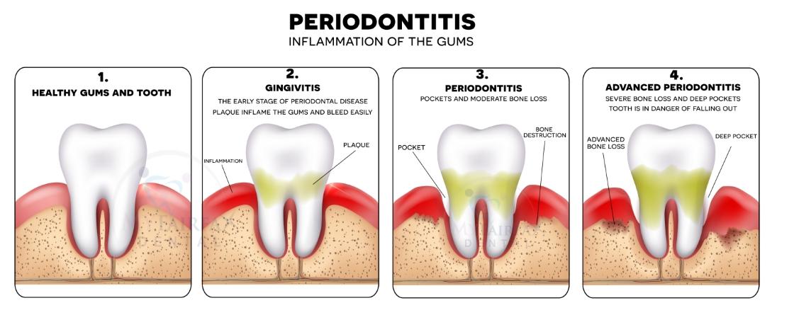 Periodontal Disease Progression and Treatment in Fairfax VA
