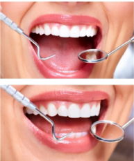 Teeth Extractions