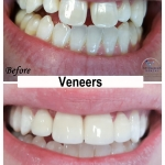 Veneers Restoration by Dr. Le of My Fairfax Dental, VA