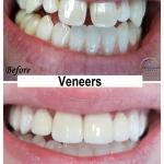 Veneers Restoration by Dr. Le of My Fairfax Dental, VA