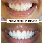 Amazing Zoom Teeth Whitening by Dr. Le of My Fairfax Dental, VA