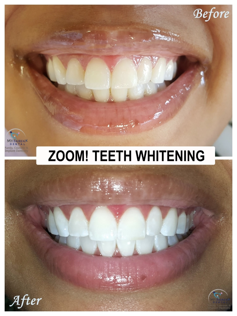 Zoom Teeth Whitening In Fairfax Va My Fairfax Dental Family