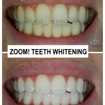 Zoom Whitening by Dr. Le of My Fairfax Dental, VA