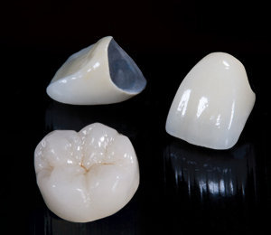 Ceramic Dental Crowns in Fairfax, VA