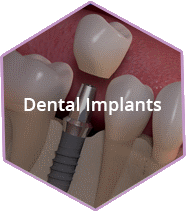 Fairfax VA Dental Implants Dentist
