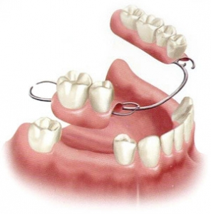 Partial Dentures at Dr. Le Fairfax VA -